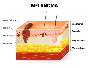 Melanoma or skin cancer
